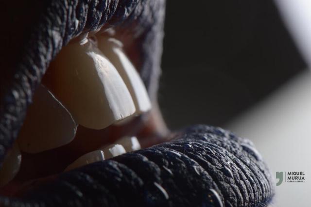 Cómo proteger el esmalte dental de la boca